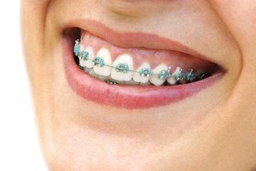 Nel nostro studio odontoiatrico di Sesto Fiorentino offriamo servizi di: Ortodonzia fissa-removibile, Ortodonzia invisibile, Ortodonzia intercettiva, Gnatologia.